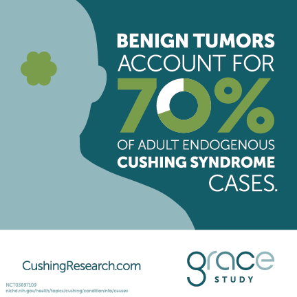 Benign tumors account for 70% of adult endogenous Cushing syndrome cases.